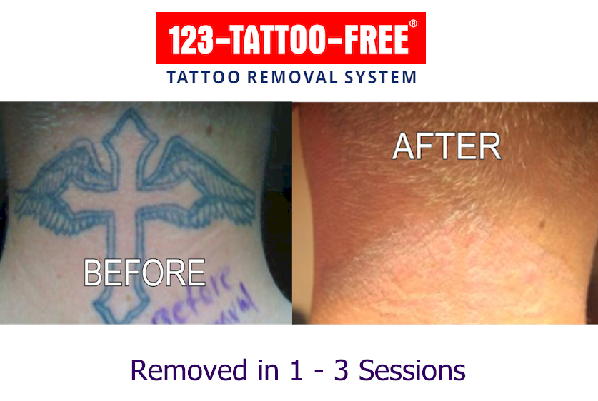 about tattoo removal with 123 tattoo free